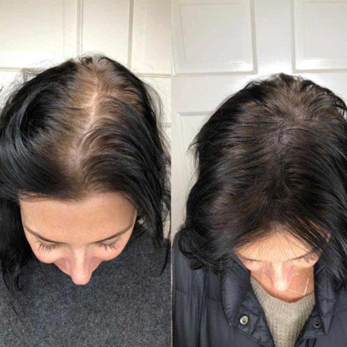 Mikropigmentácia pokožky hlavy je neinvazívne ošetrenie, pri ktorom sa pomocou mikroihiel implementuje pigment do vrchných vrstiev epidermis.