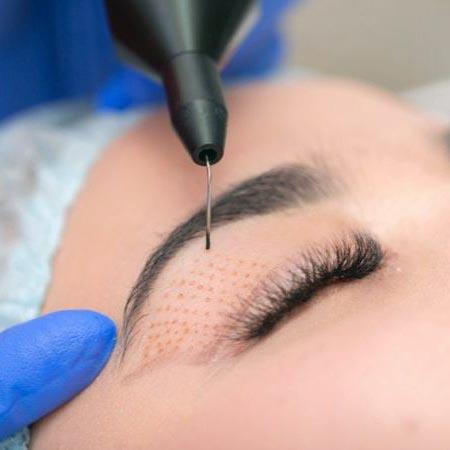 Pri ošetení plazmou sa pokožka skutočne odstráni sublimáciou, takže účinky by mali trvať tak dlho, ako by to bolo pri invazívnej chirurgii.